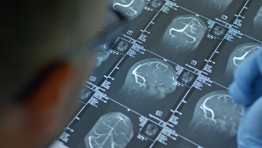 摄像机从男医生的顶视角拍摄戴手套的看着大脑的MRI扫描